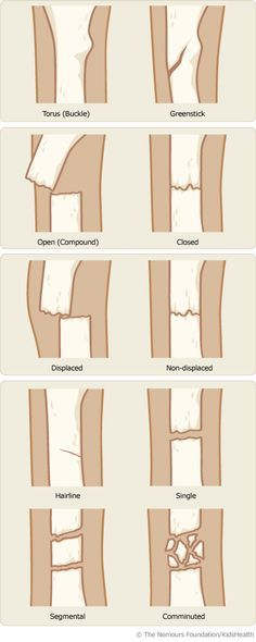 Different Types of Bone Fractures