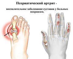артрит псориатрический кисти и стопы