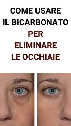 Hai Le Occhiaie? Metti Del Bicarbonato Sotto Gli Occhi Ed Eliminale Per Sempre! Beauty Care, Beauty Skin, Beauty Hacks, Hair Beauty, Face Care, Skin Care, Fitness, Anti Aging, Life Is Good