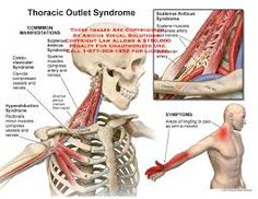 Thoracic Outlet Syndrome - Buscar con Google