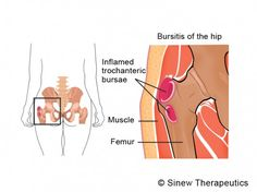 A bursa is a fluid-filled sac that functions as a gliding surface to reduce friction between moving tissues of the body. Bursitis of the hip is the most common cause of hip pain. Trochanteric bursitis frequently causes tenderness of the outer hip. Hip Flexor Pain, Bursitis Hip, Hip Pain, Back Pain, Hip Flexors, Hip Arthritis Exercises, Hip Brace, Alternative Health Care, Degenerative Disc Disease