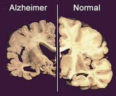 Alzheimer home remedies can help you get rid from Alzheimer.Our Alzheimer home remedies have been extracted from various tested & trusted natural resources. Alzheimer's Treatment, Alzheimer's Brain, Brain Health, Mental Health, Health And Wellness, Health Fitness, Health Tips, Physical Therapy, Lifestyle