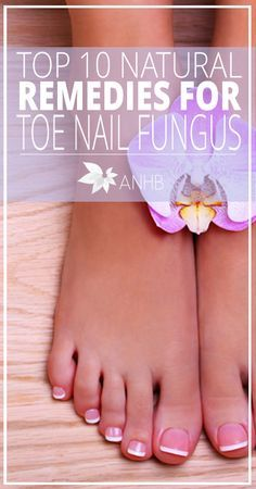 Top 10 Natural Remedies for Toenail Fungus - All Natural Home and Beauty #toenails #naturalremedies