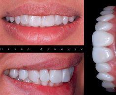 #veneers #porcelain #emax #ceramics #smile #улыбака #улыбок #dentistry #lviv #ukraine #dentist #beauty #smile #львів #краса #посмішка #усмішка #вініри #зуби #зубчики #стоматолог #львов #lwow #dental #whitesmile #aestheticdentistry #вініри #виниры #стоматолог #стоматологія #краса #естетика #newlook #клінікаавторськоїстоматологіїмарянимельничук by nazarok Our General Dentistry Page: http://www.myimagedental.com/services/general-dentistry/ Google My Business…