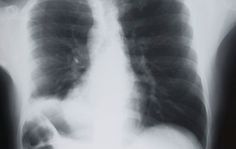 How Lung Cancer Develops Slowly The Deadly Cancer That Grows for Two Decades Researchers stress that early detection is critical