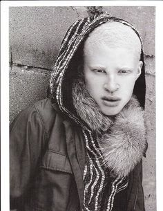 Albino model Shaun Ross