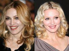Madonna – Botox, Fillers, Laser Skin Resurfacing, Laser Skin Tightening and IPL Photofacial