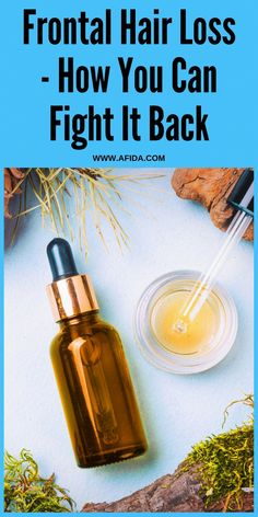 Your Guide to Reversing Frontal Hair Loss If you're looking for a frontal hair loss remedy, you're probably pretty stressed. Ease off and be happy that you've finally found what you've been looking for - the best frontal hair loss remedy, right here. #FrontalHairNeed #GuideForHairIssues #OilForHairLoss