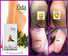 Oda Beauty Baby Foot Exfoliate Peel Rough Callus Remover Mask Skincare Pedicure