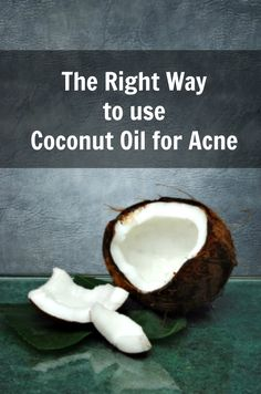 Coconut Oil Acne Treatment - Acne Removal Treatment by Coconut Oil