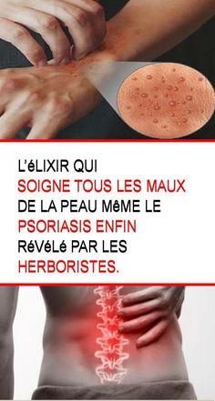 L'élixir qui soigne tous les maux de la peau même le psoriasis enfin révélé par les herboristes.