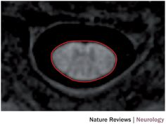 Avonex and spinal cord atrophy  BMC Med Imaging. 2016 Oct 5;16(1):56. The effect of intramuscular interferon beta-1a on spinal cord volume in relapsing-remitting multiple sclerosis.  Dupuy SL Khalid F Healy BC Bakshi S Neema M Tauhid S Bakshi R. Abstract BACKGROUND: Spinal cord atrophy occurs early in multiple sclerosis (MS) and impacts disability. The therapeutic effect of interferon beta-1a (IFNβ-1a) on spinal cord atrophy in patients with relapsing-remitting (RR) MS has not been explored…