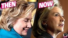 Putting Her Best Face Forward! Hillary Clinton Had Plastic Surgery ...