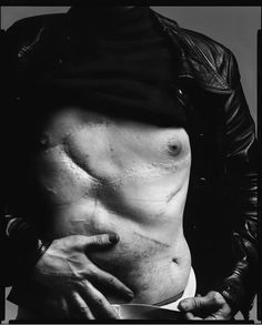 After being shot by feminist Valerie Solanas in 1968, Warhol took many photographs of his scarred torso, turning injury into art. This one is taken by Richard Avedon.