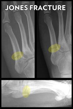 Understanding The Jones Fracture Of The Foot: Jones fractures are located at the base of the 5th metatarsal bone.
