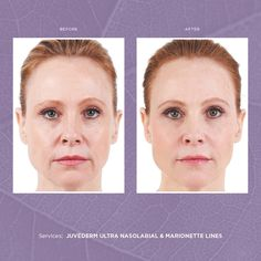 JUVÉDERM VOLUMA™ Filler Voluma is the latest and longest lasting injectable Hylauronic Acid filler to hit the market. It's the only one FDA approved as a cheek and midface filler. Best of all the results…