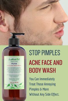 Acne Face & Body Wash / Use if you have acne on your face, back, arms and shoulders. Ultra-concentrated, safe and gentle for extra strength makes this so effective that it immediately stops the breakouts and pimples from getting bigger and helps it to disappear. Buy Only online at Amazon, Walmart, eBay. Buy at https://justnutritive.com/clear-face-and-body-wash/