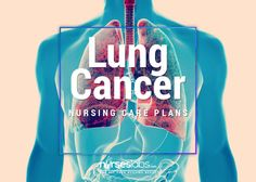 Lung Cancer or carcinoma of the lungs is characterized by uncontrolled growth of tissues of the lung. Below are 5 nursing care plans for patients with Lung Cancer. Oncology Nursing, Nursing Diagnosis, Pharmacology Nursing, Nursing Labs, Nursing School Tips, Medical School, Nursing Care Plan, Critical Care Nursing, Lung Cancer Treatment