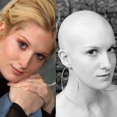 WEBSTA @ bald.girls - #headshaving #headshaved #headshave #bald #baldhead #baldgirl #baldwoman #baldwomen #cleanhead #cleanshaven #nohair Bal Dosanjh.girls