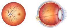 """""""Nu este nimic mai rău decât să vă întindeți sub laser! Puteți să vă luați rămas bun de la ochii…"""" Renumitul oftalmolog român a spus adevărul despre corecția cu laser și a sfătuit alte modalități de a restabili vederea, care ajută nu mai rău! Cancer"""