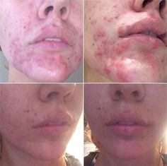 "When UK Skin Therapist Laura Keating shared this incredible before and after with Dermalogica UK, we were absolutely thrilled to see the results! Laura's client has only been using #Dermalogica for two weeks, and they're happy to report that this been ""life changing"" for her. Do you have a great before and after? We'd love to see it!   *Products used thus far: #PreCleanse, #DailyMicrofoliant, Active Moist and Overnight Clearing Gel. #acne #breakouts"