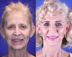 Wanda, 62 – Youthful Reflections Facelift / Reflection Lift Fat Transfer Fractional Co2 Laser Skin Resurfacing