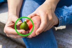 I lékaři považují tuto metodu za efektivní. Fig Juice, Garlic Pills, Natural Exfoliant, Fresh Figs, Aspirin, Warts, Tea Tree Oil, Skin Problems, Home Remedies