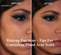 Makeup For Acne - Tips For Concealing Pitted Acne Scars ~ MediMiss