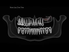 Las ventajas de los implantes como solución ante la perdida de molares. Casos prácticos y Soluciones con imágenes. Clínica Dental Mario Oliden Torrevieja.