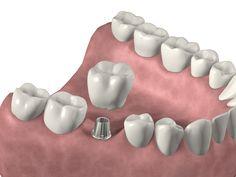 Implante Unitario Cementado