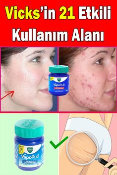 What are Vicks good for? How to do belly melting with Vicks? # Informations About Vicks nelere iyi gelir? Pin You can … At Home Hair Removal, Hair Removal Cream, Uses For Vicks, Vicks Vaporub Uses, Belly, Health Care Reform, Fitness Tattoos, Unwanted Hair, Homemade Skin Care