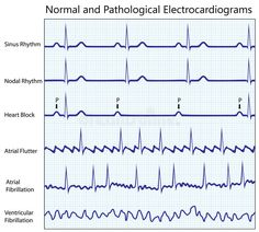This ECG Interpretation course will show how to identify normal versus abnormal cardiac anatomy, cardiac cycle and electrical conduction through the heart. Chemistry Basics, Cardiac Anatomy, Continuing Education For Nurses, Studying Medicine, Pharmacology Nursing, Study Organization, School Motivation, Medical Science, Medical Information
