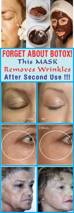 FORGET ABOUT BOTOX! This MASK Removes Wrinkles After Second Use!