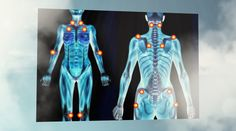 Many of those already suffering from the pain of fibromyalgia also suffer from myofascial pain syndrome. Myofascial pain syndrome is another form of chronic pain that can affect the entire body, pa… What Is Fibromyalgia, Treating Fibromyalgia, Fibromyalgia Syndrome, Fibromyalgia Treatment, Chronic Fatigue Syndrome, Chronic Illness, Chronic Pain, Diagnosing Fibromyalgia, Medicinal Plants