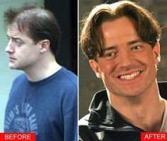 7 Best Celebrity Hair Transplants Images Hair Transplant Hair Hair Removal