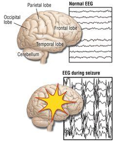 Partial Seizures (Focal Seizures)  ******   Renn's are Complex Partial