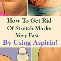how to get rid of acne scars Wrinkle Remedies, Cellulite Remedies, Acne Remedies, Skin Care Regimen, Skin Care Tips, Stretch Mark Remedies, How To Get Rid Of Acne, Prevent Wrinkles, Stretch Marks
