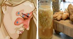 Mezcla estos dos ingredientes y dile adiós a la sinusitis, flema, gripe, rinitis y más