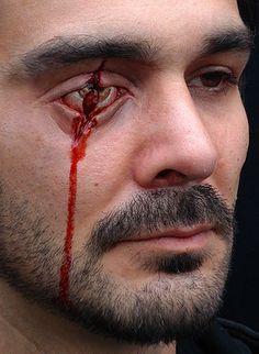 eye injuri, bad eye