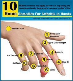 Pain Remedies Know the natural home remedies for arthritis in hands, which are available in your very own kitchen. These home remedies are highly effective in improving the symptoms of arthritis of hands thereby improving a person's quality of life. Natural Cure For Arthritis, Home Remedies For Arthritis, Types Of Arthritis, Natural Home Remedies, Health Remedies, Herbal Remedies, Psoriasis Remedies, Prevent Arthritis, Arthritis Symptoms Hands
