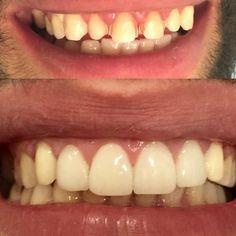 Ayna ayna var mı benden daha güzel gülen dünyada ? #gülümse #lächeln #veneers #laminateveneers #zirkonyum #zirkonzahn #zirkoniumkrone #smiledesign #gülüştasarımı #implantat #implant #dentistry #dentist #estheticdentistry by drzeynepgursel Our General Dentistry Page: http://www.myimagedental.com/services/general-dentistry/ Google My Business: https://plus.google.com/ImageDentalStockton/about Our Yelp Page: http://www.yelp.com/biz/image-dental-stockton-3 Our Facebook Page…