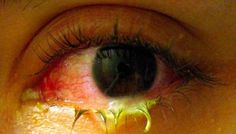 Cara Menyembuhkan Mata Belekan Secara Cepat tanpa menimbulkan efek samping sedikitpun pada penggunanya. Terbuat dari bahan yang memiliki banyak manfaat