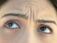 Stop Looking Angry! - Forehead wrinkles telegraph grumpiness, but our expert anti-aging tips and treatments erase them (without going near a needle).