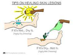 Tips on Healing Skin Lesions. Nursing School: Medical Surgical Nursing Class Mnemonics.