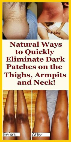 Dark Spots How to Get Rid of Them