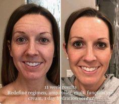 Rodan and Fields Redefine, AMP MD Roller, Multifunction Eye Cream, Lash Boost, active Hydration Serum