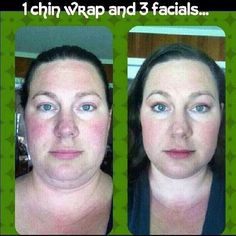 Great facial results!  It Works is a body overhaul to health and beauty!  Get yours today at www.wrapitupwithsandi.com