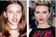 Scarlett Johansson at the very beginning of her career changed the appearance for the better thanks to rhinoplasty. The nose of a young actress, resembling a patch, surgical art made elegant, slightly upturned. Famous Celebrities, Celebs, Upturned Nose, Celebrity Plastic Surgery, No One Is Perfect, Young Actresses, Career Change, Rhinoplasty, Scarlett Johansson