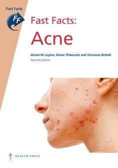 Fast Facts: Acne 2nd Edition Pdf Download e-Book