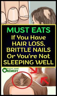 These Foods Will Stop Your Hair Loss, Brittle Nails And Will Make You Sleep Like… - Health Remedies Shimmer Eye Makeup, Brittle Nails, Long Layered Haircuts, Winter Makeup, Stunning Eyes, Beautiful, Long Hair Cuts, Pimples, Hair Loss